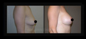 Breast Augmentation - Before & After P88b