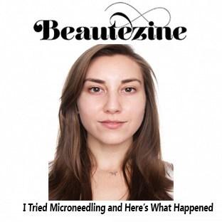 Beautezine - Microneedling