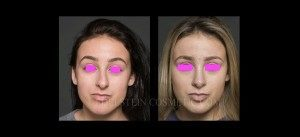 Primary Rhinoplasty Before & After - P02
