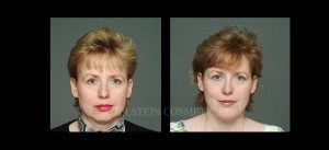 Primary Rhinoplasty Before & After - P08