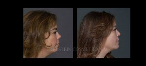 Primary Rhinoplasty Before & After - P09
