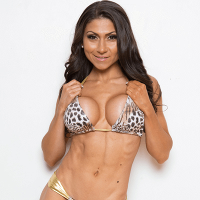 Claudia - Breast Augmentation Toronto
