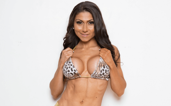 Claudia - Breast Augmentation Toronto