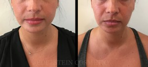 Botox Cosmetic Treatment Before & After p11